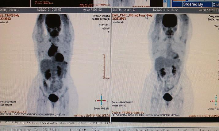 1-24-13 PET Scan